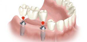 art3-bath8049-kw3-implantes-dentales-en-bilbao